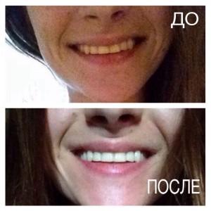 до и после чистки зубов