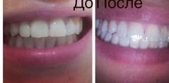 До и после отбеливания зубов