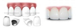 протезирование фронтального зубного ряда