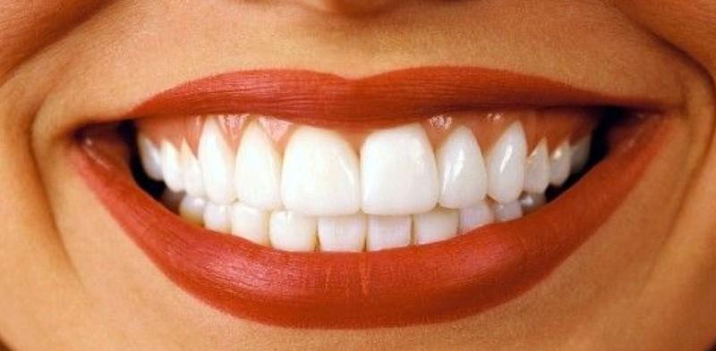 Профессиональная чистка зубов — 2900 руб.