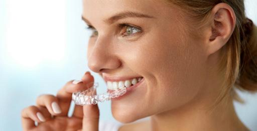Зубные элайнеры
