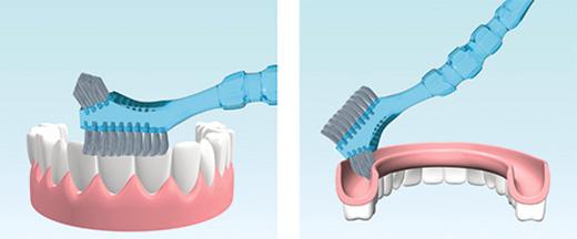 Чистка зубных протезов