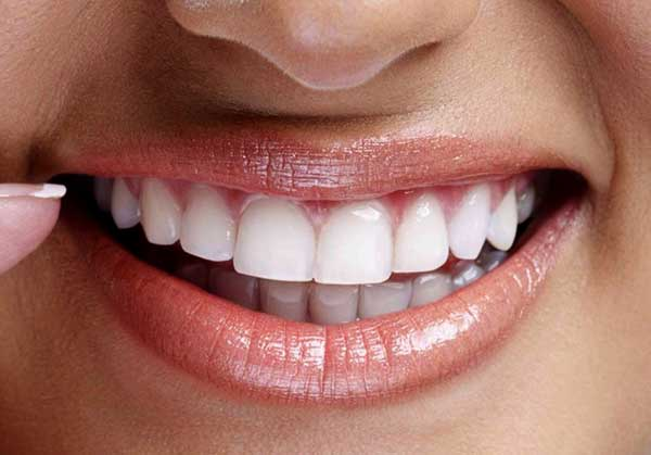 Гигиеническая чистка зубовГигиеническая чистка зубов