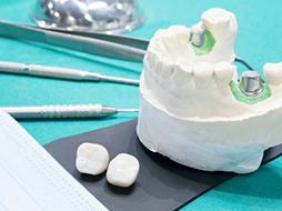 Восстановление одного или нескольких зубов