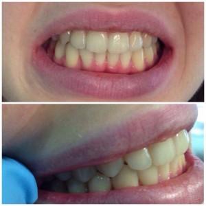 Примеры работ ортодонта