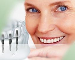 Имплантация зубов в стоматологии на Народной улице