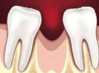 Что делать если нет зуба