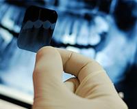 Рентген в стоматологии Невский район