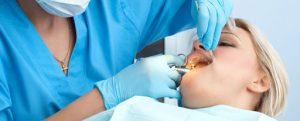 Операция по удалению зубов