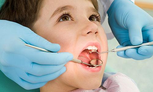 Лечение кариеса коренных зубов у детей