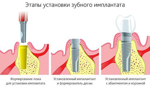 Этапы установки зубного импланта