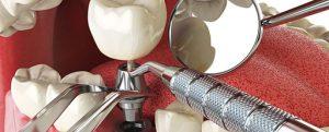 Процесс установки импланта