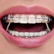 Резиночка, прижимающая ортодонтическую дугу