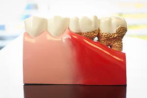 Лоскутные операции, восполнение костной ткани, пластика десен и пр