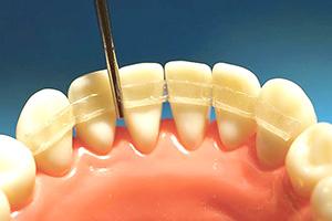 Протезирование или шинирование подвижных зубных единиц