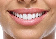 Удлинение коронки зуба