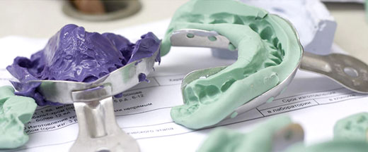 Снятие слепков челюстей стоматологическими ложками