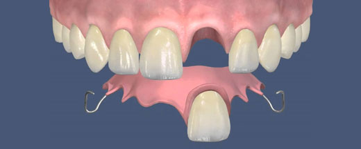 Условно съемный протез на один зуб