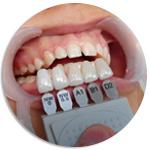 Виниры на зубы при незначительных сколах