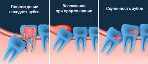 Удаление зубов мудрости