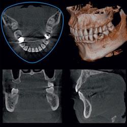 Компьютерная томография (3D KT)
