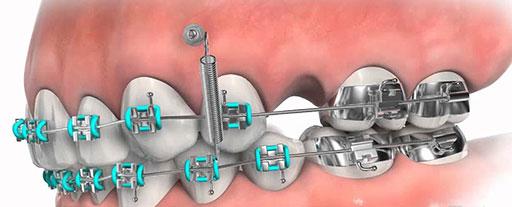 Мини-импланты в ортодонтии